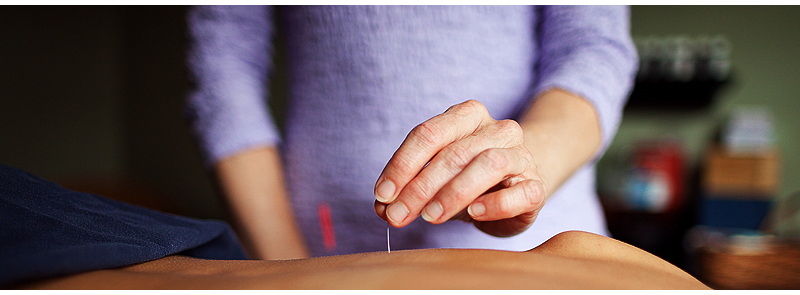 acupuncture new uses for an ancient What is it and how does it work acupuncture is an ancient practice originating in china that uses trigger points to eliminate pain the specific trigger points to be.